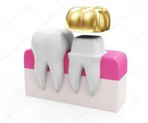 dentist-crown.jpg