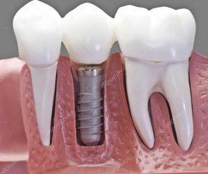 dentist-implants.jpg